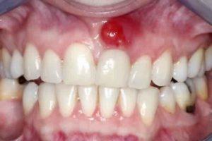 Comment se forment les abcès dentaires ?