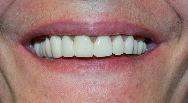 bridge dentaire tarif