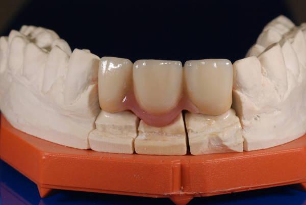 Quelles sont les différences entre bridge et implant ?