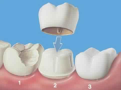 Qu'el est l'intérêt d'une couronne dentaire ?