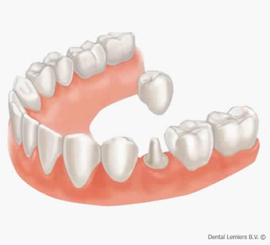 18e4081a2b1b22 Guide complet de la couronne dentaire   utilité et conseils d entretien