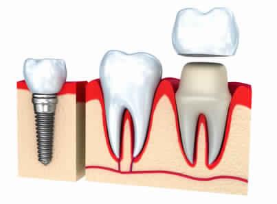 Pourquoi opter pour les couronnes dentaires ?