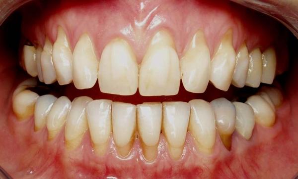 Que faire si vos dents se déchaussent ?