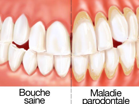 Quelles sont les causes d'un déchaussement de vos dents ?