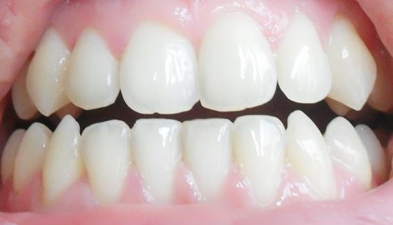 Faut-il s'inquiéter si vos dents se déchaussent?