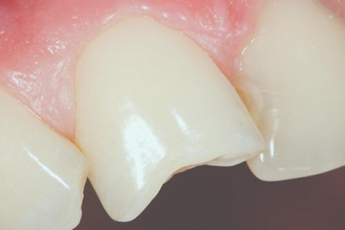Comment réparer une dent qui s'est cassée ?