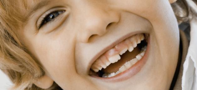 Dent cassée : les bons réflexes à avoir pour pouvoir restaurer votre dent naturelle