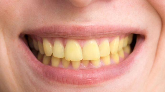 Quelles sont les causes des dents jaunes ?