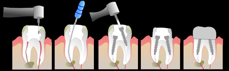 Pourquoi se faire poser une dent sur pivot ?