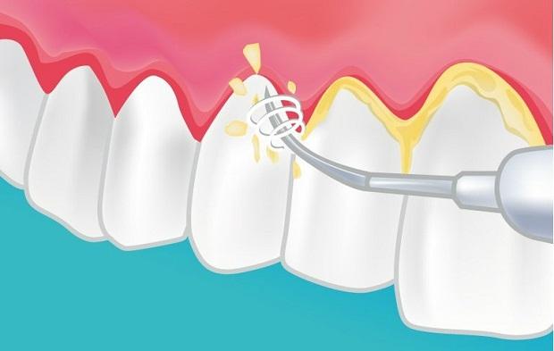 Pourquoi réaliser un détartrage dentaire régulièrement