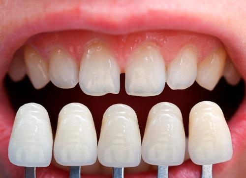 Faut-il se faire poser une facette dentaire ?