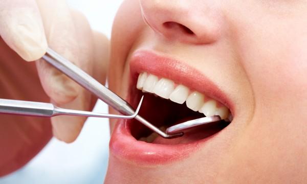 Quels traitements pour la gingivite ?