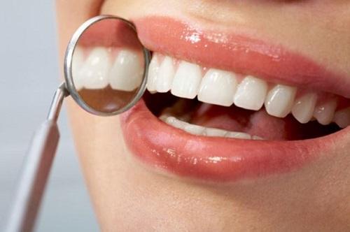 Implant dentaire : quelles sont les techniques de poser et leur prix.