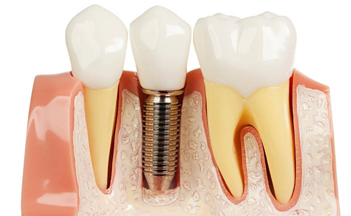 Comment choisir sa prothèse dentaire