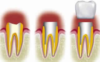 Remplacer une dent avec un inlay core