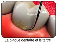Différence entre plaque et tartre dentaire