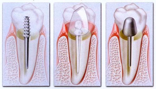 Quel est l'intérêt de dents sur pivot ?