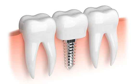 Comment se passe la pose d'un implant dentaire ?