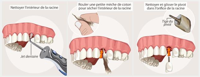 Comment poser une dent sur des pivots ?