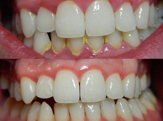 Le tartre dentaire : comment se forme-t-il et comment le ...