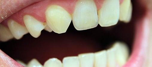 Quelles sont les causes d'une agénésie dentaire ?