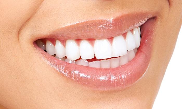 Comment se faire blanchir les dents ?