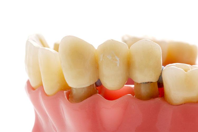 Quel est l'utilité d'un bridge dentaire ?