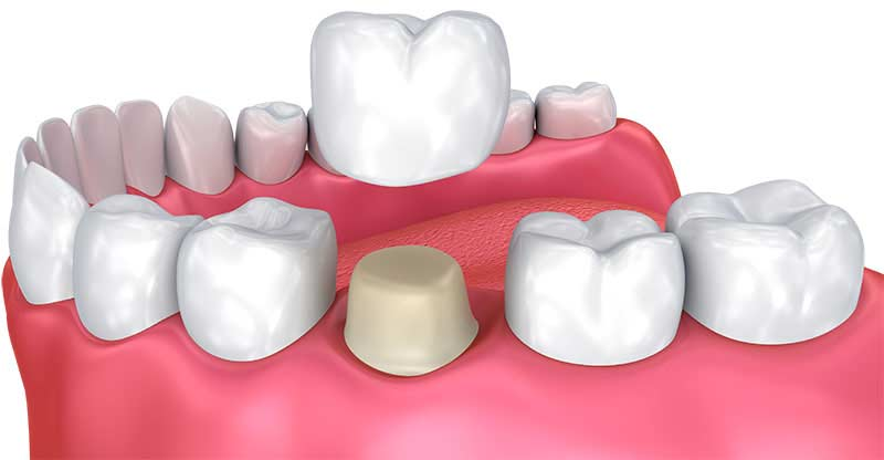 Comment se déroule la pose d'une couronne dentaire ?