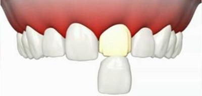 Pourquoi opter pour des facettes dentaires ?