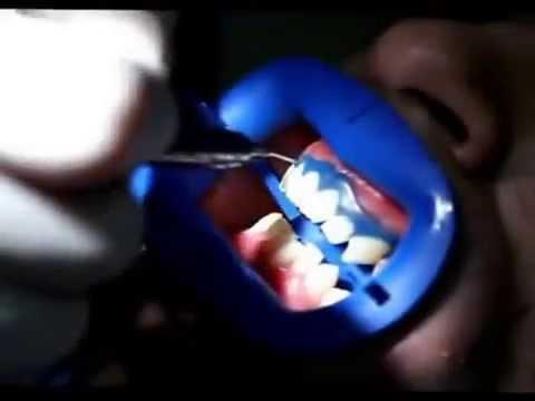 Combien coûte un blanchiment des dents dentiste ?