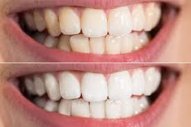 Comment avoir des dents moins jaunes ?