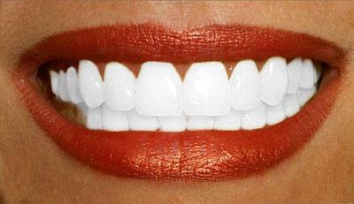 Quelles sont les meilleures techniques de blanchiment dentaire ?