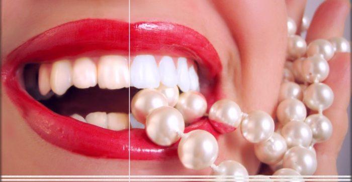 prix blanchiment dentaire lille