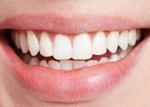 Comment perdre du poids en prenant soin de ses dents ?