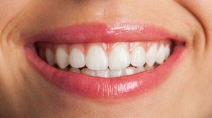Avoir les dents blanches grâce à la brosse à dents électrique