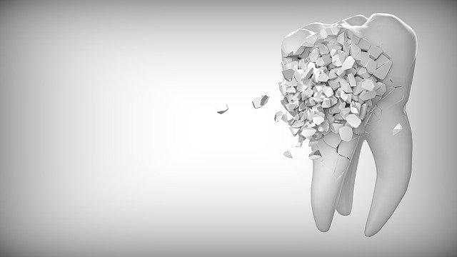 Opération avant implant dentaire